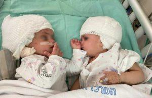gemelline siamesi unite testa